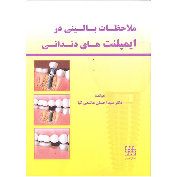 ملاحظات-بالینی-در-ایمپلت-های-دندانی