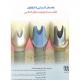 راهنمای-کلینیکی-و-لابراتواری-اباتمنت-در-ایمپلنت-های-دندانی